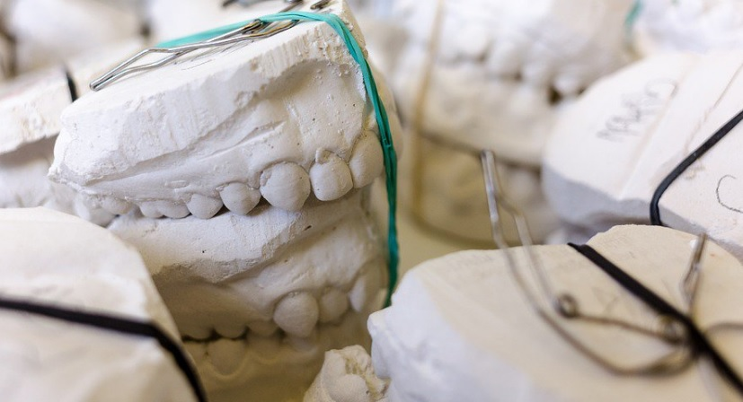 3D printed dental models. Photo via the 3D Medical Printing Conference.