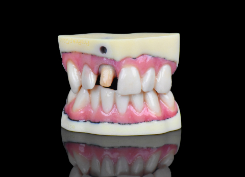 A full-color dental model 3D printed on the J720 Dental by Stratasys. Image via Stratasys.