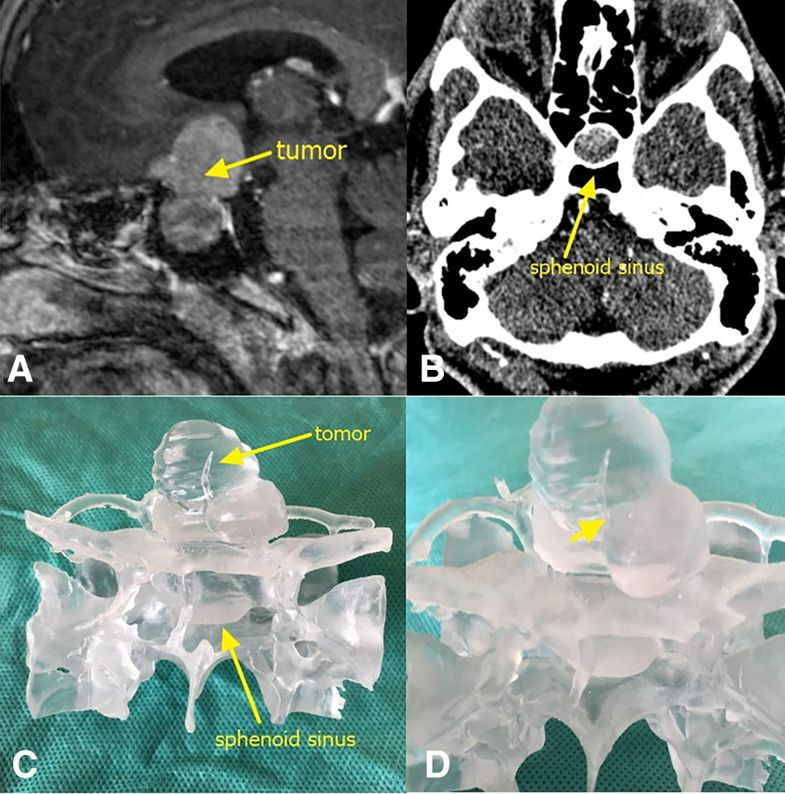 A) An tumor lesions. The yellow arrow points to the tumor itself. b) A CT of the sphenoidal sinus. c) A frontal view of the 3D printed tumor model. d) An enlarged image of a part of the tumor. The yellow arrow shows that the tumor wraps around the left side of the anterior communicating artery. Image via HUST.
