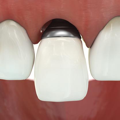 The titanium 3D printed EAP abutment. Image via EA-platform.