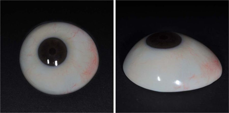 Final output of the customized ocular prosthesis fabricated using 3D printing and surface printing. Image via Severance Hospital.