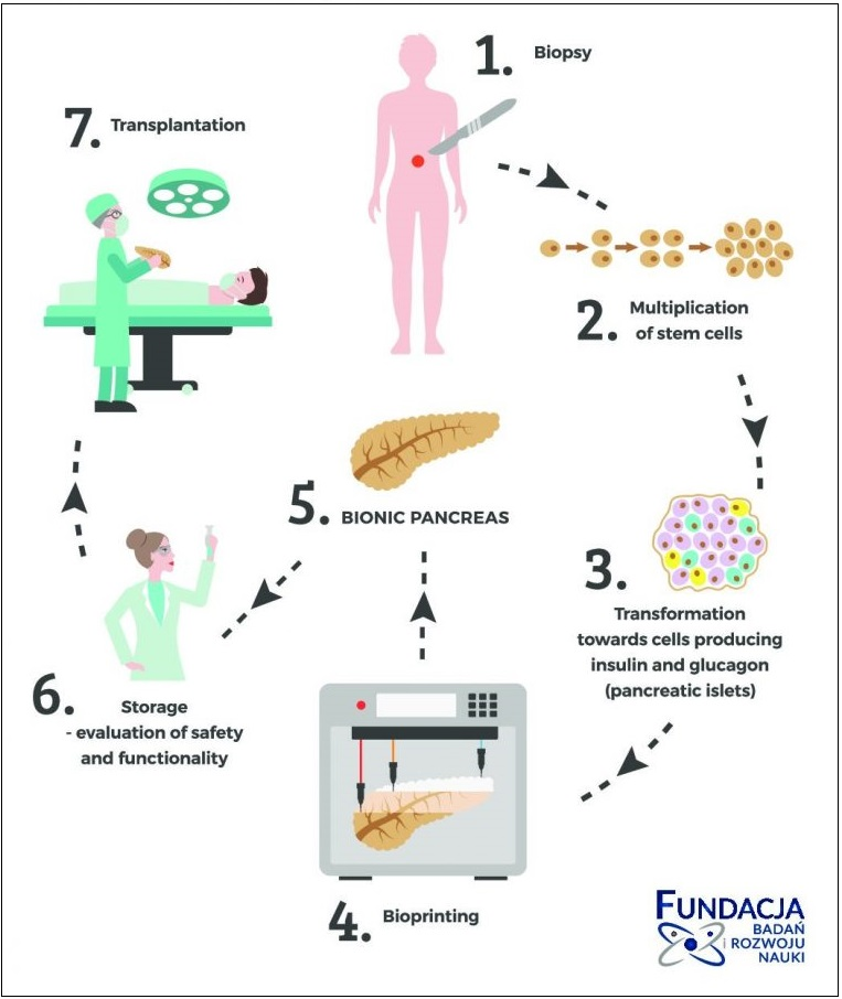 The process of the bionic pancreas. Image via Fundacja BIRN.