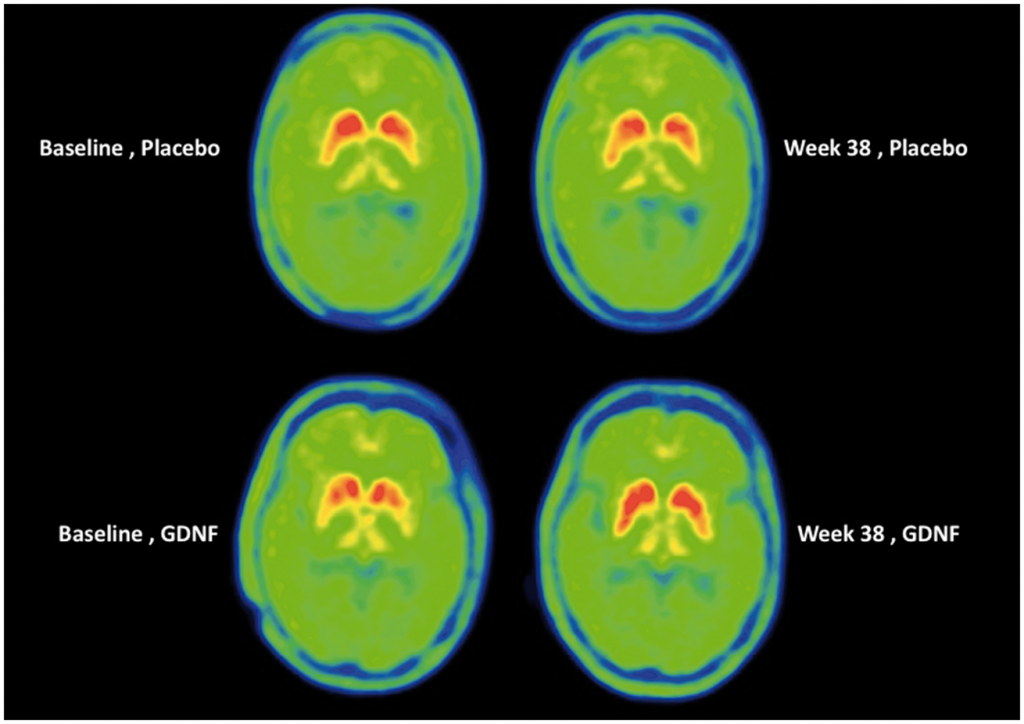 """Top: Images are from a patient who was receiving placebo infusions every 4 weeks; 10 placebo infusions in total. Bottom: Images are from a patient who was receiving GDNF infusions every 4 weeks; 10 GDNF infusions in total."" As you can see from the comparison, there is very little difference in the central putamen (marked red) which is essentially for motor function. Image and quoted caption via Brain journal"