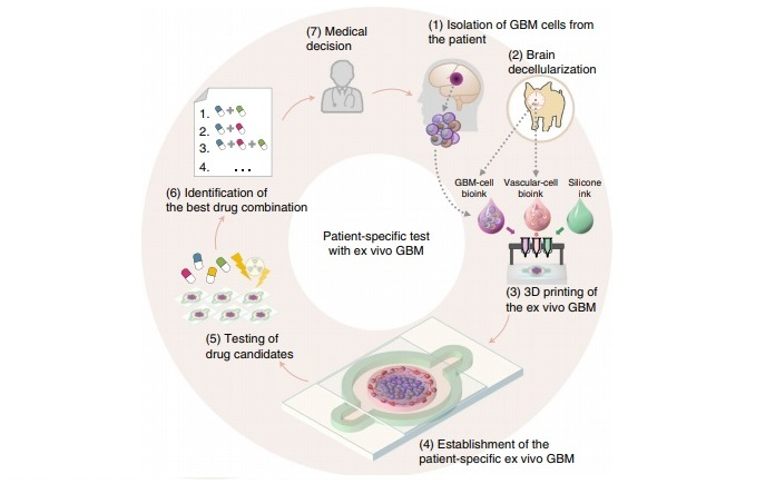 Schematic illustration of the bioprinting and use of the patient-specific GBM-on-a-chip for the identification of an optimal drug combination for the patient. Image via SNUH/POSTECH.
