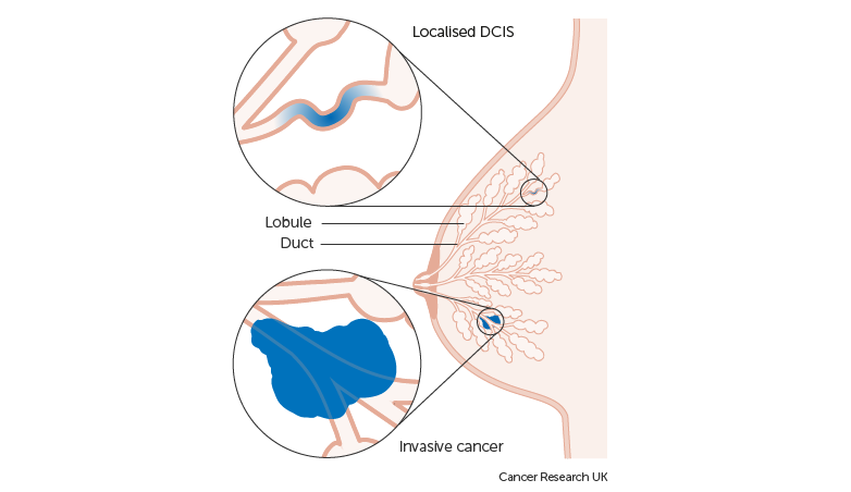 The occurrence of abnormal cells in ductal carcinoma in situ (DCIS) Image via Cancer Research UK