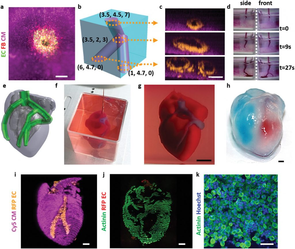 3D printed construction of a miniature heart model. Image via Advanced Science