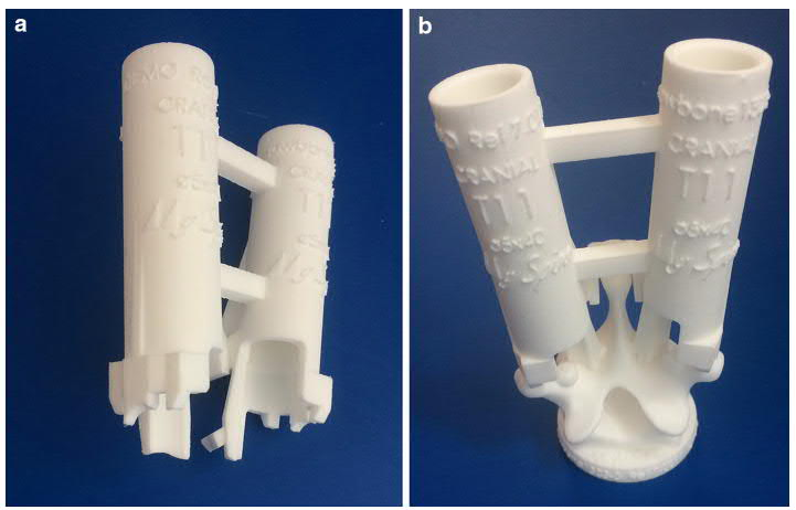 The 3D printed MySpine guide by Medacta used for spinal surgery. Image via Springer.