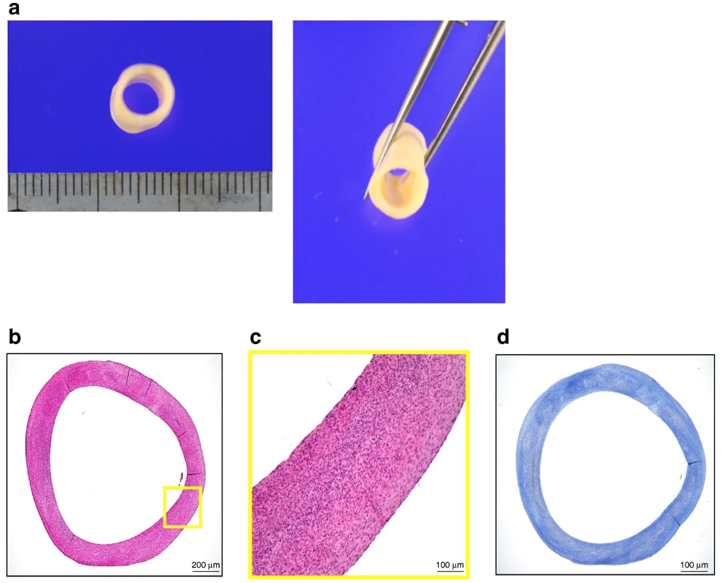 "Macroscopic photographs of the ""human original 3D bioprinted tube"" (HOBPT) used in this study. Image via nature communications"