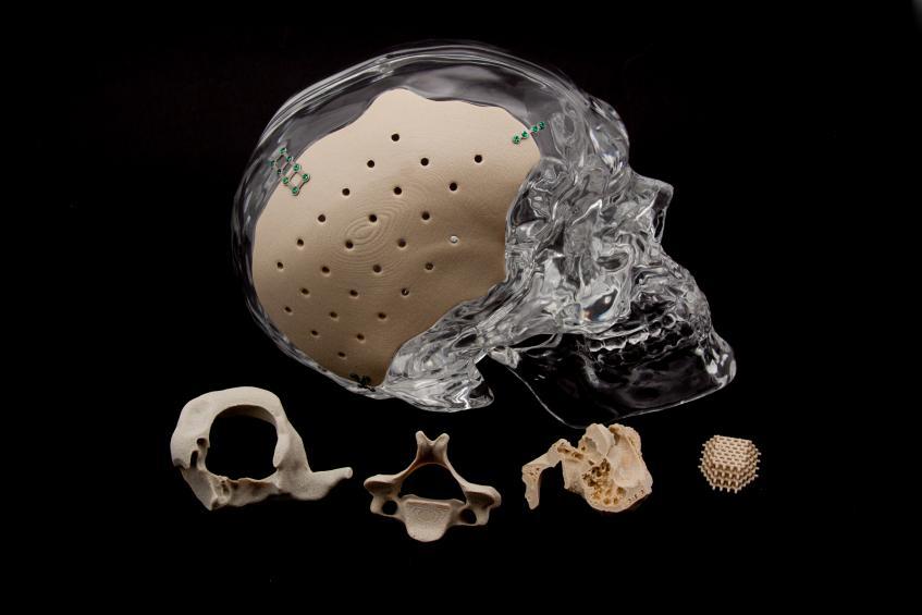 OsteoFab 3D printed PEKK implants. Photo via Oxford Performance Materials.