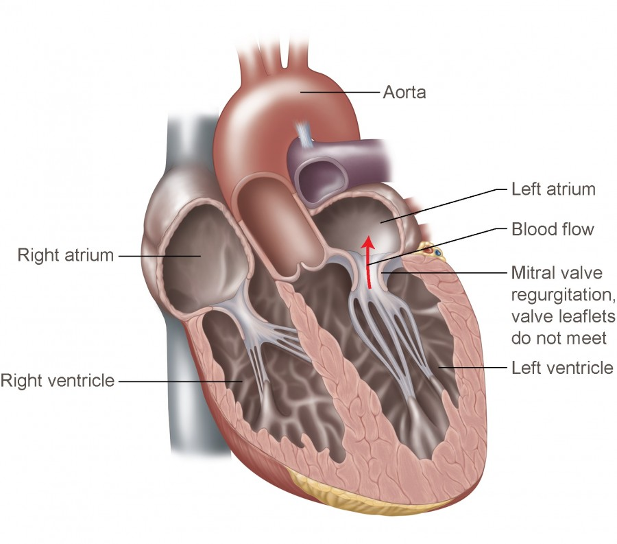 A diagram of mitral valve regurgitation disease. Image via Temple Health.