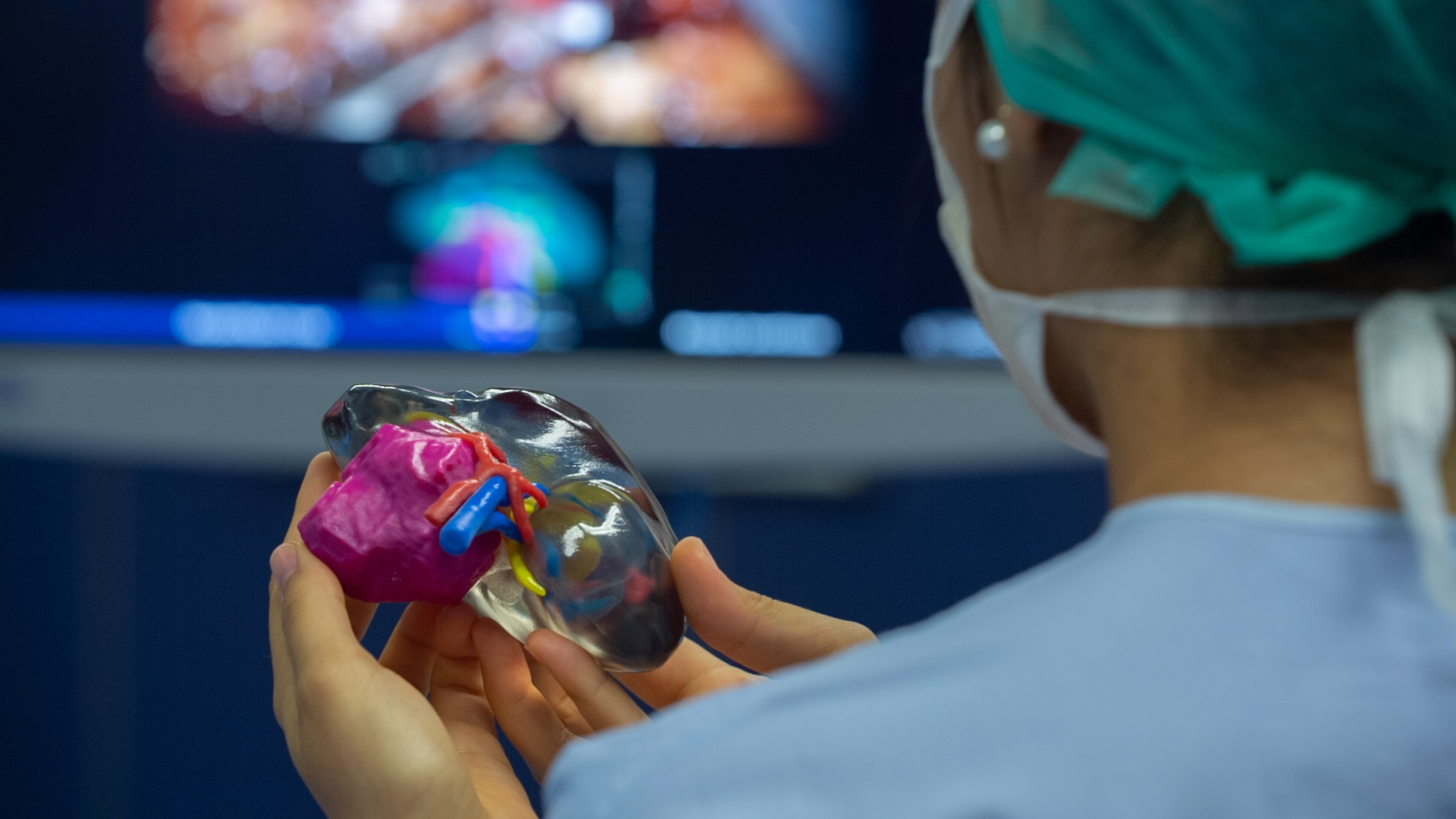 3D printed kidney tumor model used in pre-surgical planning. Photo via Stratasys