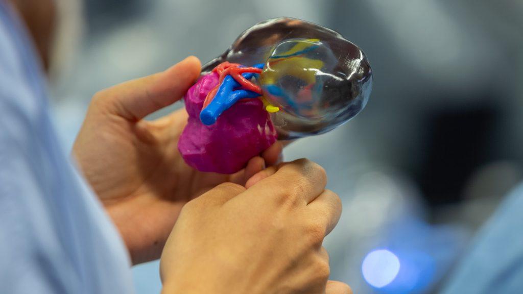 3D printed kidney tumor model at CHU de Bordeaux. Photo via Stratasy