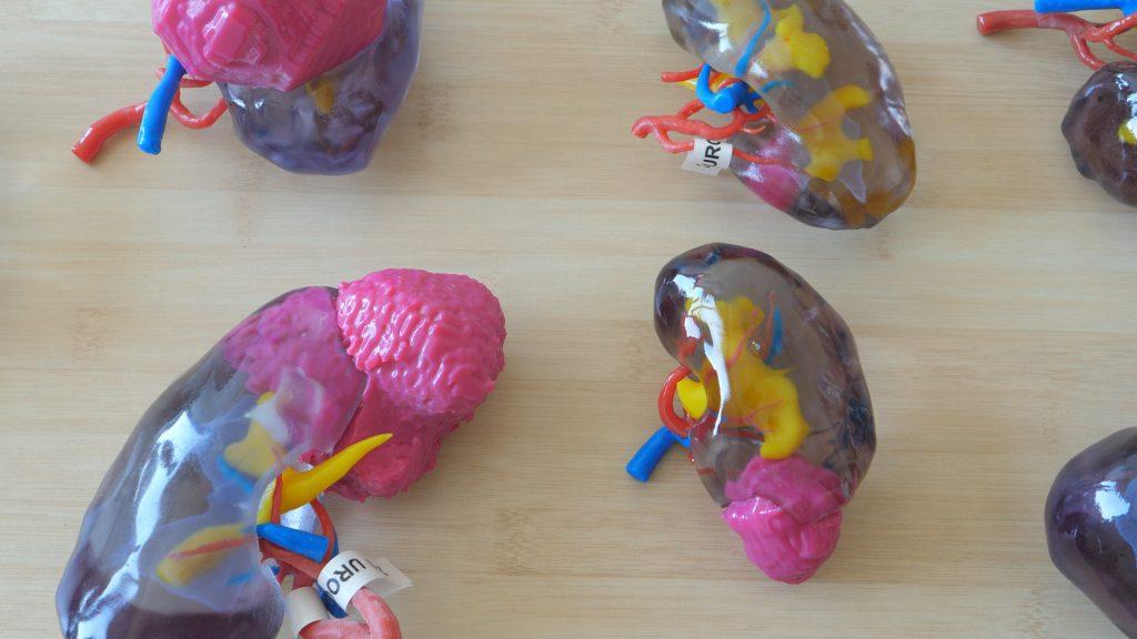 3D printed kidney models at CHU de Bordeaux. Photo via Stratasys