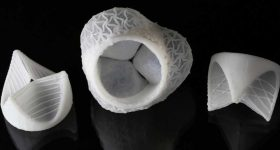 Multi-material 3D printed patient-specific shaped heart valves. Photo via Fergal Coulter/ETH Zurich.