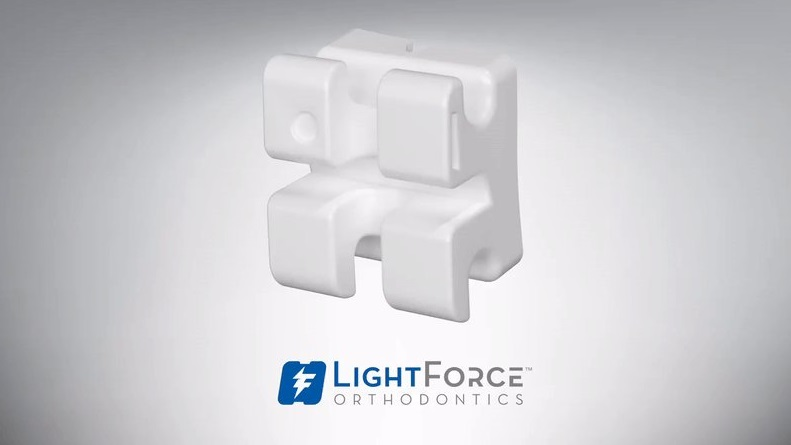 A 3D printed brace from LightForce Orthodontics. Photo via LightForce Orthodontics.