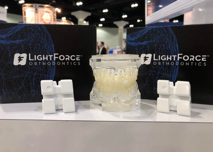 3D printed braces from LightForce Orthodontics. Photo via LightForce Orthodontics. 3D printed braces from LightForce Orthodontics. Photo via LightForce Orthodontics.