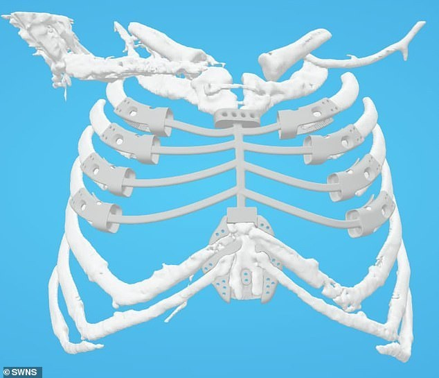 Digital rendering of the 3D printed titanium sternum implant. Image via Daily Mail.