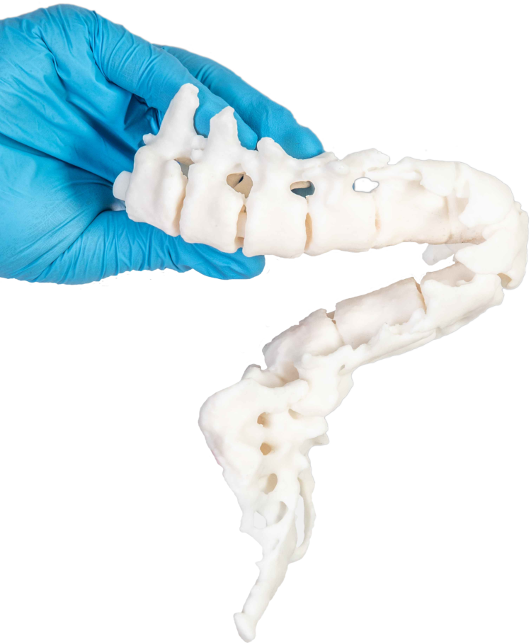 A patient-specific model of spinal bifida deformity created at Newcastle Hospitals. Photo via axial3D
