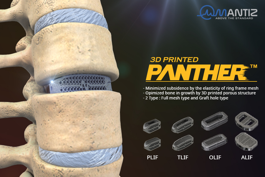 The complete range of PANTHER 3D printed spinal implants. Image via Mantiz