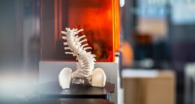 An anatomical model of a spine 3D printed by axial3D. Photo via axial3D
