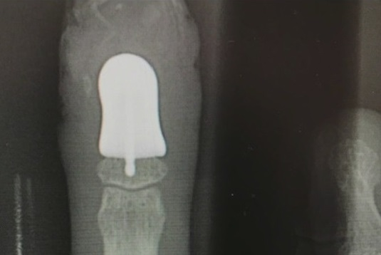 An X-ray of the 3D printed finger implant. Image via Fox 13.