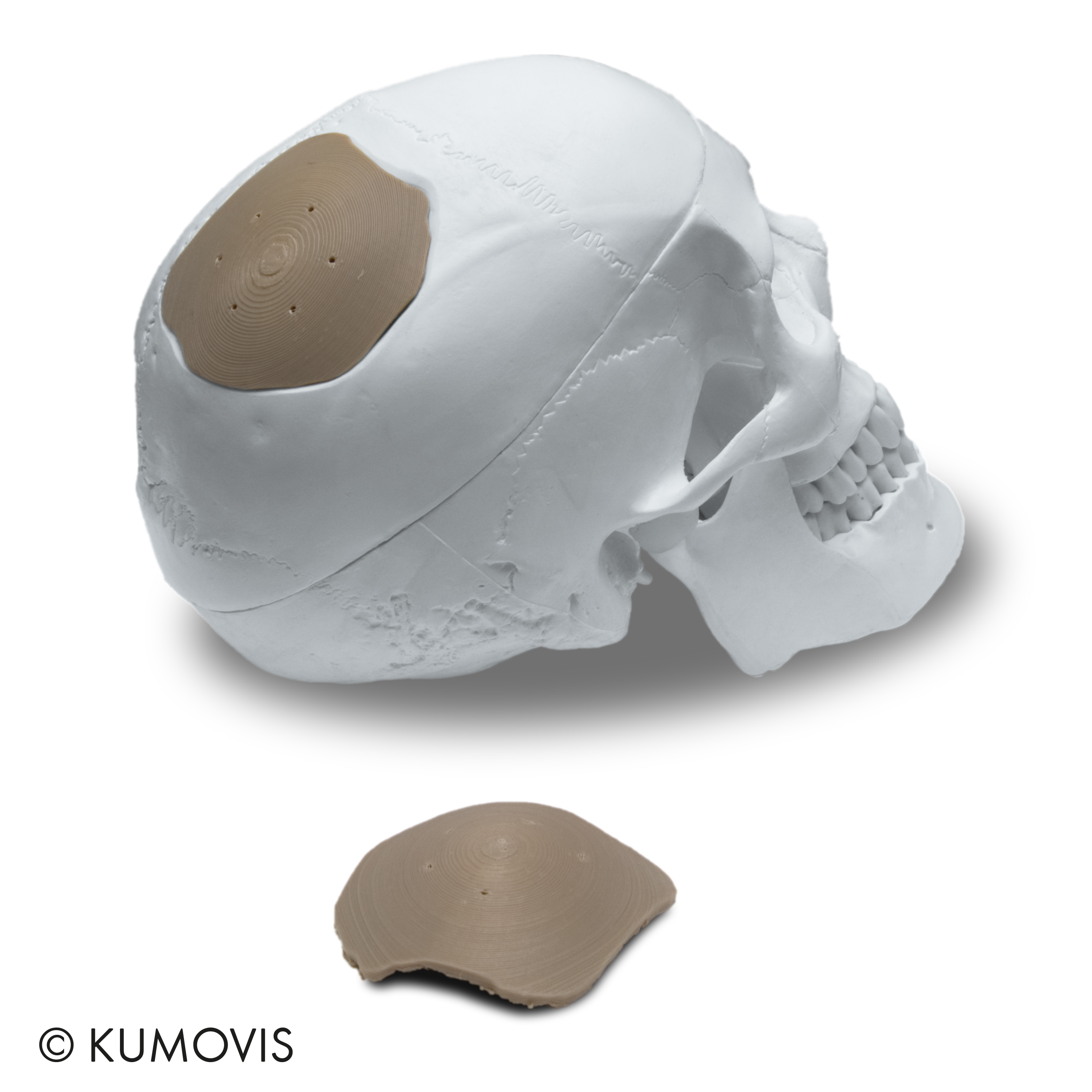 A cranial implant produced on the Kumovis R1 3D printer. Photo via Kumovis.