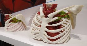 3D printed anatomical models. Photovia RSNA.