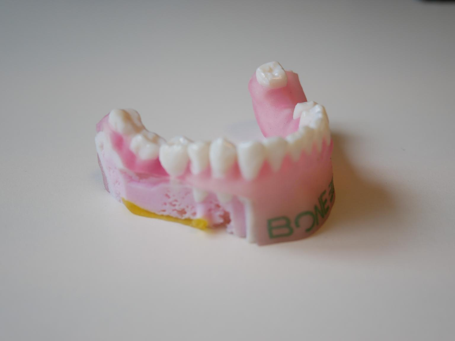 A 3D printed orthodontic model produced on the Stratasys J750. Photo via Bone 3D.