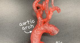 Aortic arch annotated on 3D printed model to support procedural planning for treatment of mitral valve disease. Photo via VA Puget Sound Health Care System