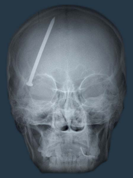 A CT scan of a nail in the head causing a TBI. Image via Qrons.