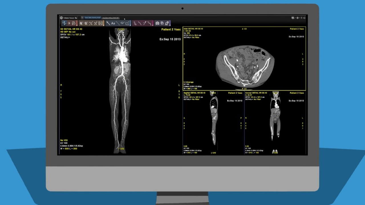 GE Healthcare AW Advanced Visualization software. Image via GE Healthcare.
