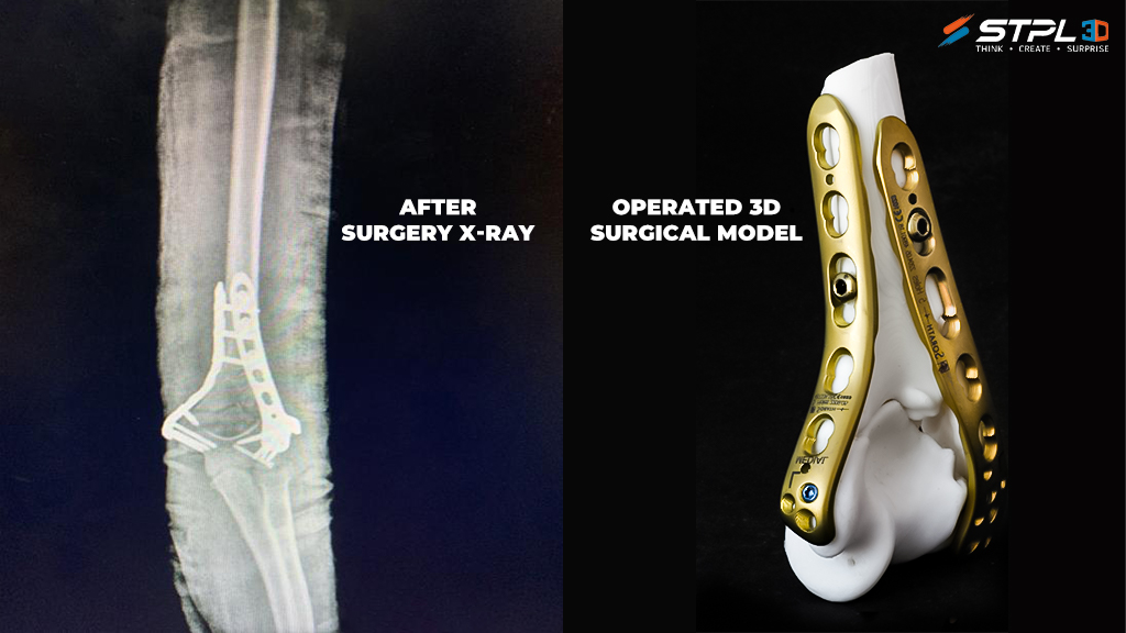 Dr. Jignesh Pandya and STPL3D produced a patient-specific printed fractured elbow bone from resin to guide the surgical process. Photo via STPL3D