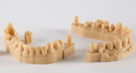 3D printed dental model. Photo via Prodways.