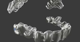 Invisalign treatment with mandibular advancement. Image via Align Technologies.