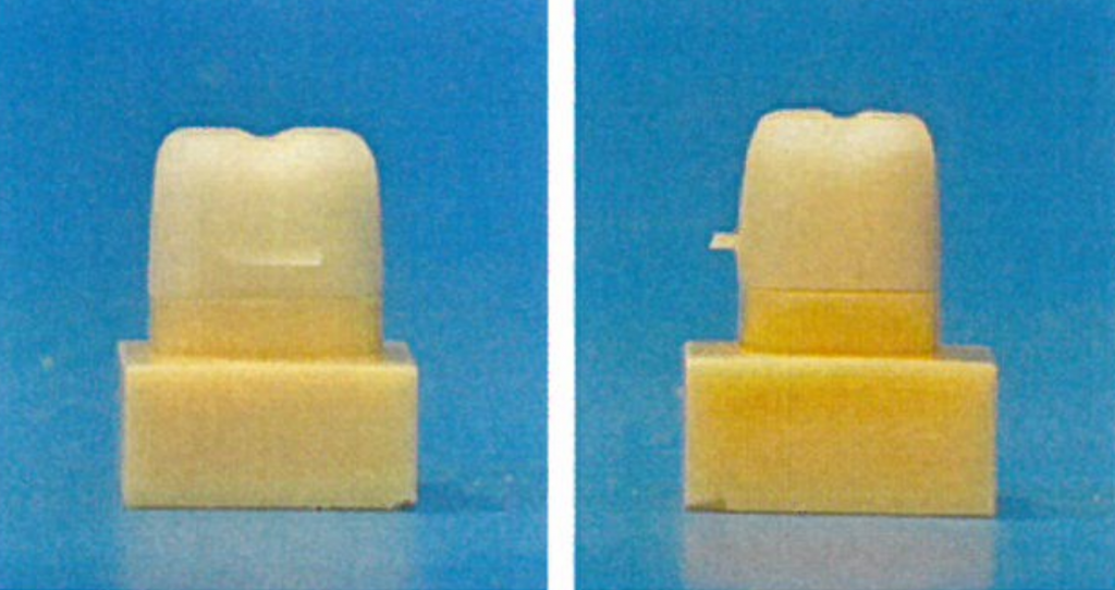 SLA fabricated die and restorations. Photos via University of Zurich.