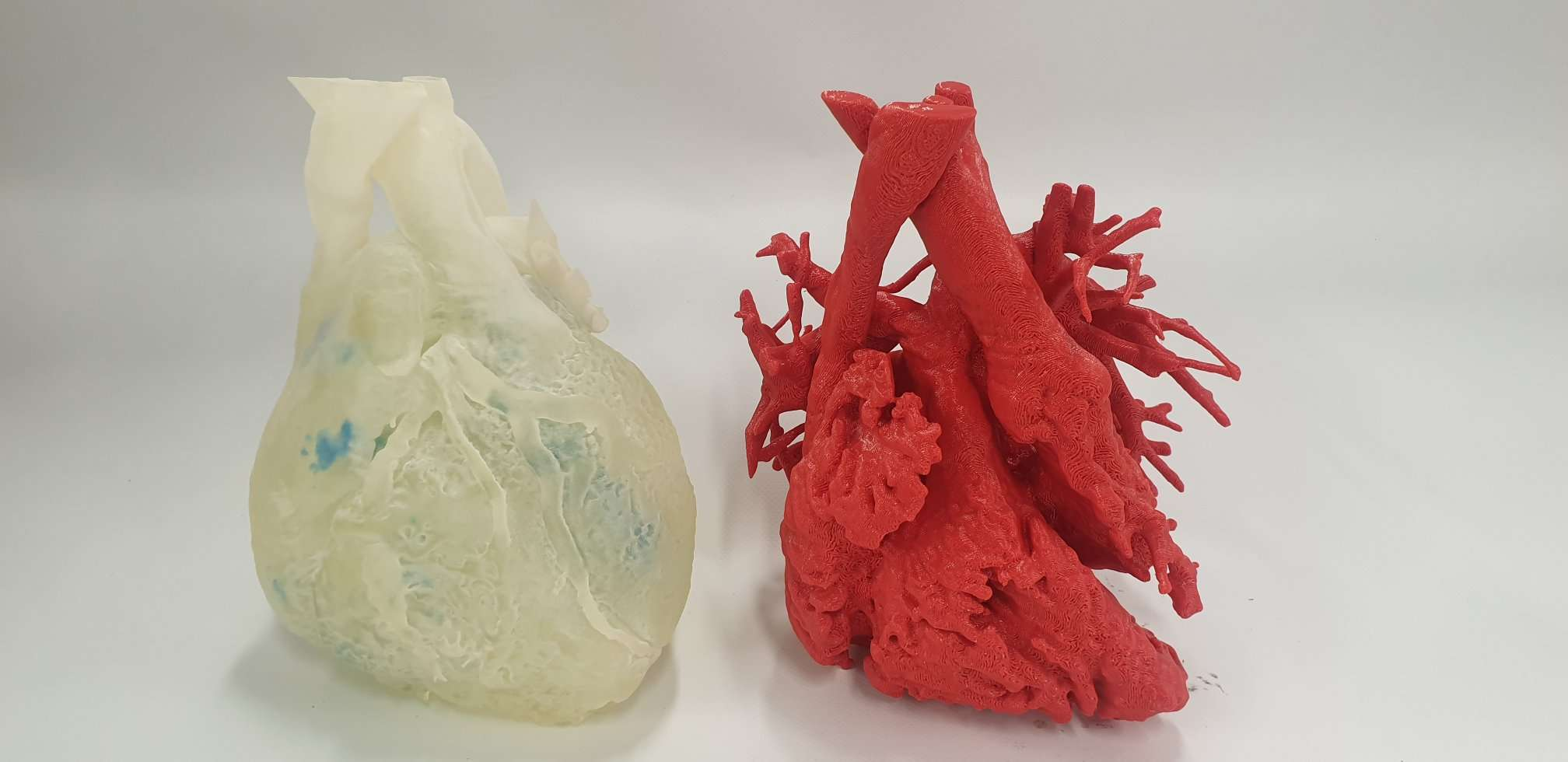 3D Lifeprints technology has been utilized in a range of medical applications including soft printed models to simulate operations (pictured). Photo via 3D Lifeprint.