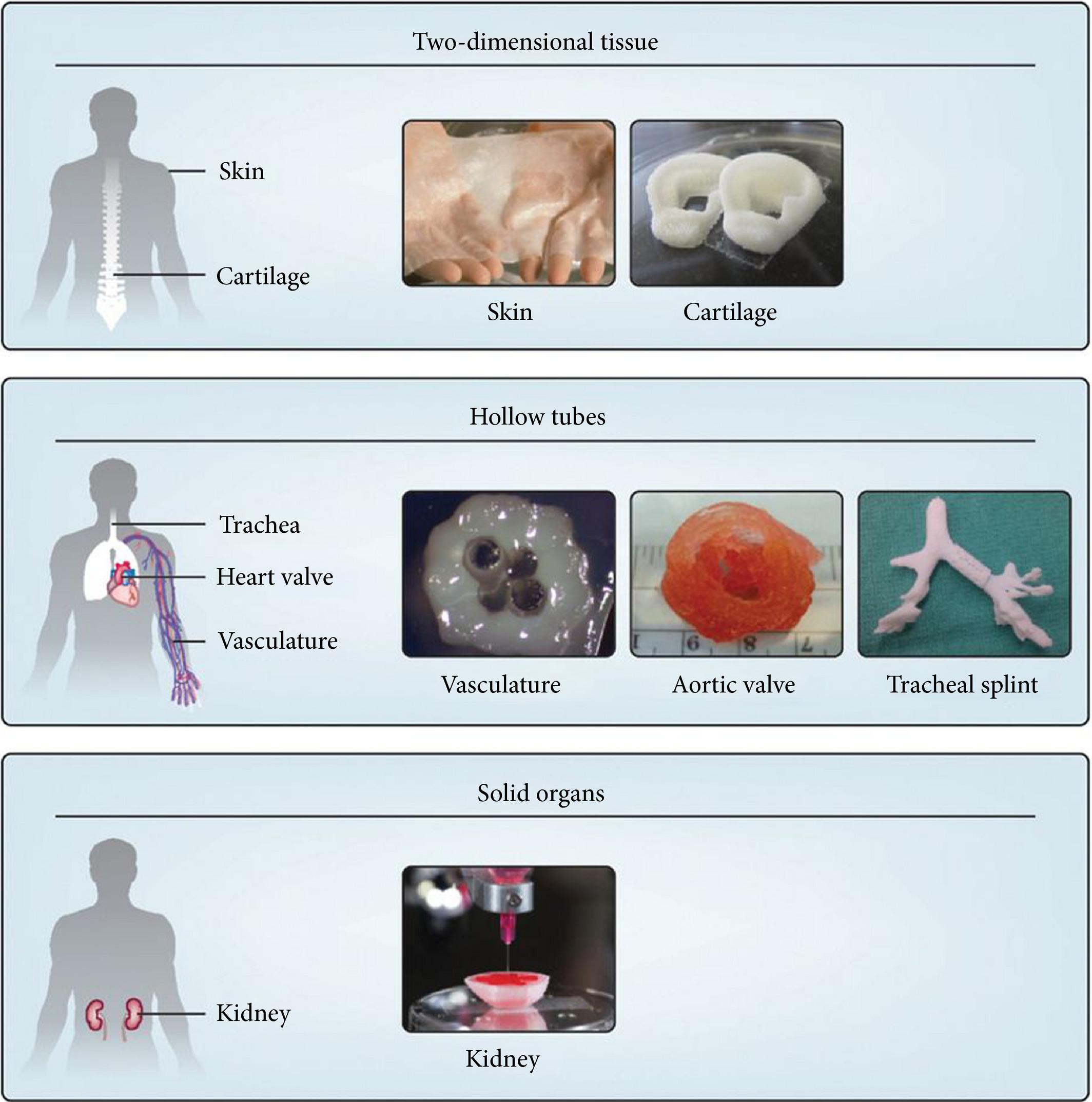 Developments in 3D bioprinting. Image via BJU International.