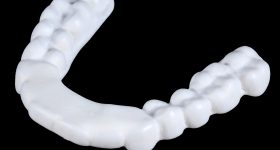 SLS 3D Printed Dental Part. Photo via PostProcess Technologies.