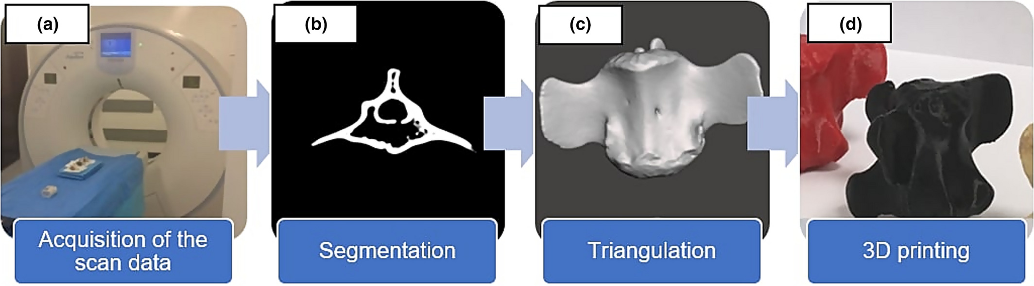 The scan-to-print 3D printing pipeline that the researchers used to produce the 3D models. Image via the Journal of Medical Radiation Sciences.