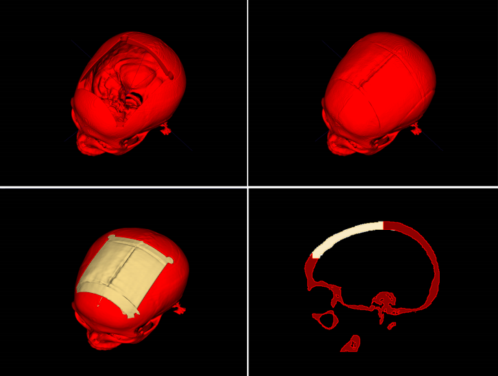 The Austrian researchers developed an automated process that allowed users to design cranial implants. Image via the Graz University of Technology.