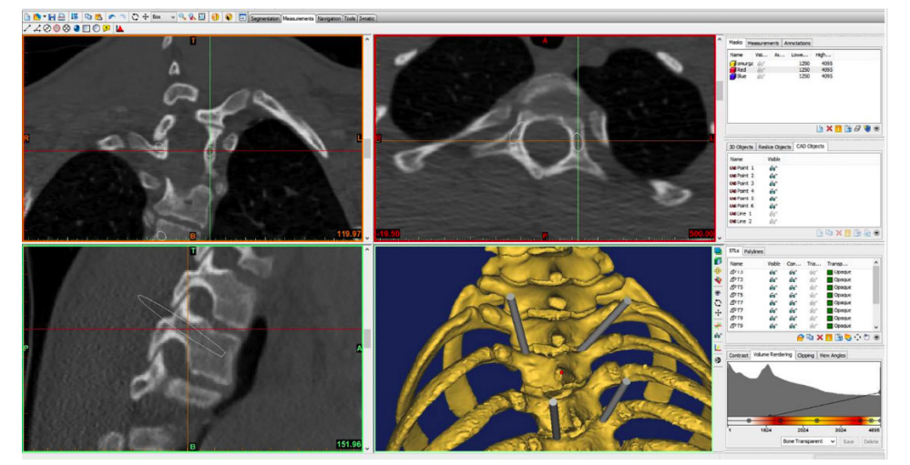 The angle of pedical screw insertion displayed through 3D imaging. Image via the Journal of Orthopaedic Surgery.