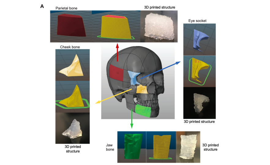 Texas A&M researchers use 3D printed biomaterials to create facial bone grafts