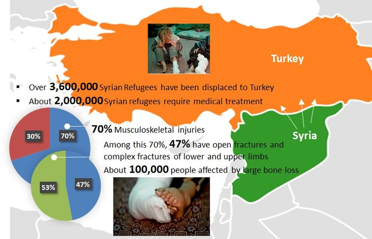Infographic on Syrian refugees in Turkey. Photo via Bartolo.