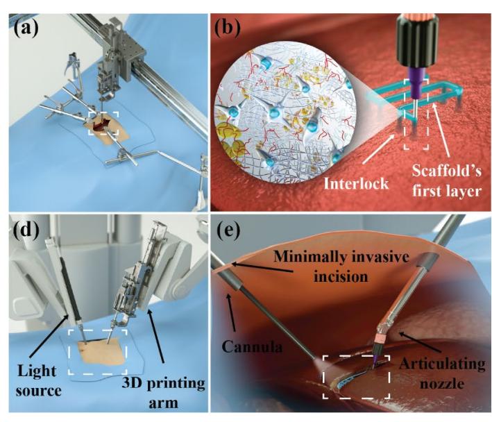 Scientists examine straight 3D printing tissues inside the physique utilizing robotics 1
