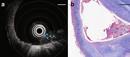 Images captured using the research team's endoscopic device revealed a necrotic core of dead cells (pictured). Image via the Light: Science and Applications journal.