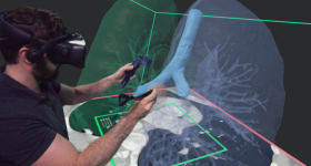 Users will now be able to draw directly onto 3D models in Elucis. Image via Realize Medical.