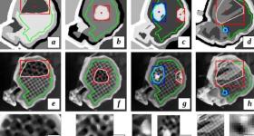 The algorithm detecting regions of abnormal texture. Image via MTU.