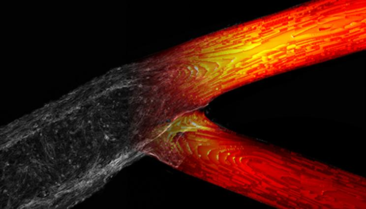 Computer analysis carried out at LLNL revealed a pattern in where the cancer cells gathered in the 3D printed vascular structure. Image via LLNL.
