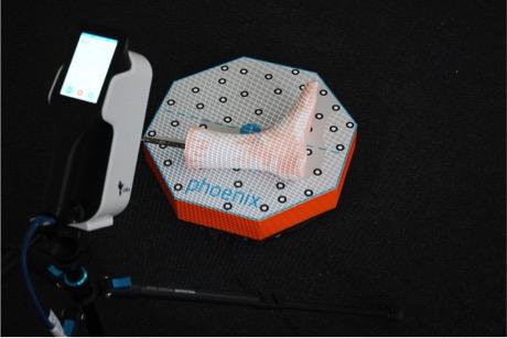 Set-up of Calibry 3D scanner. Image via Phoenix GmbH & Co.