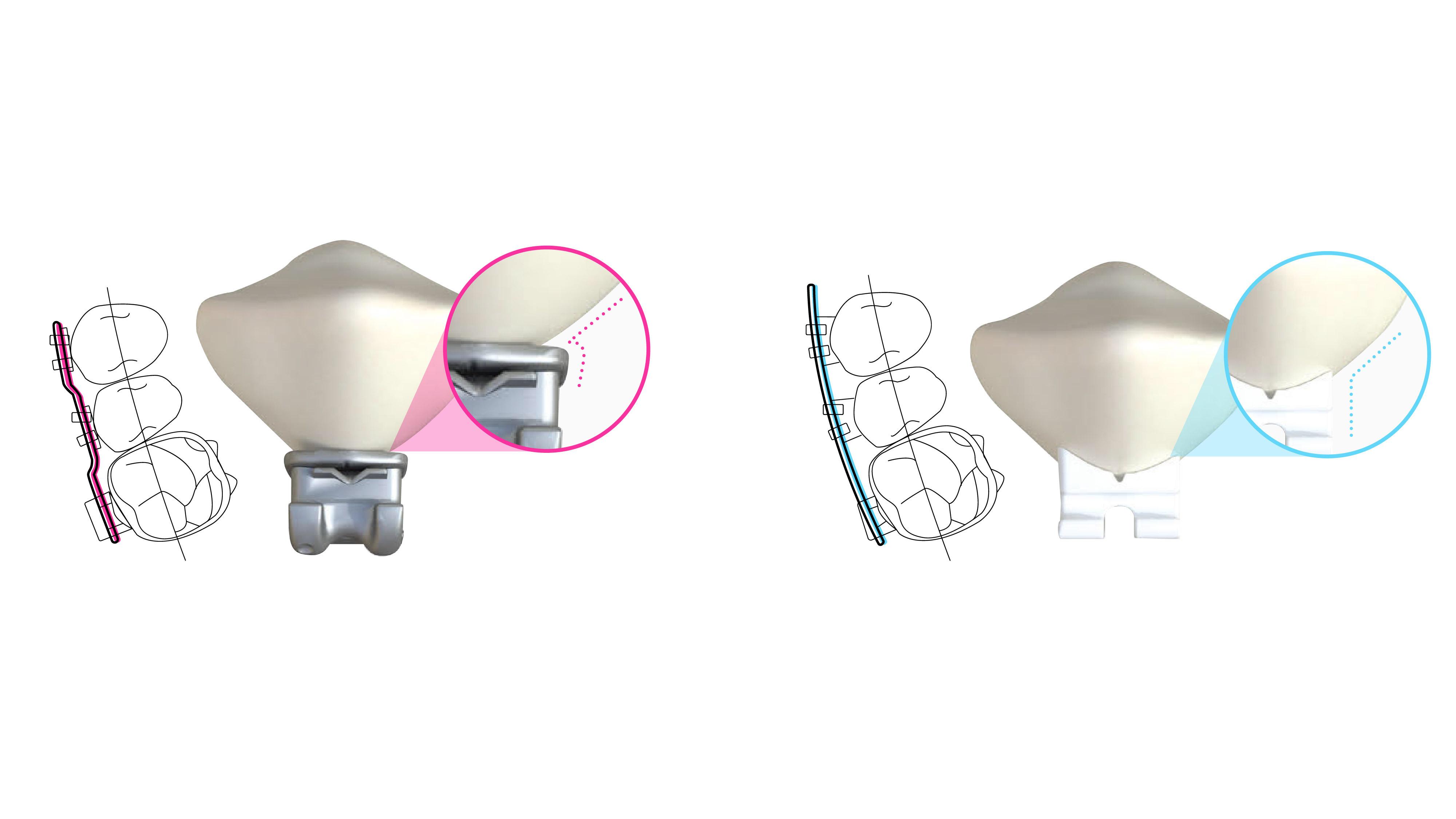 Traditional brackets (left) vs LightForce brackets (right). Image via LightForce.